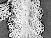 Crochet jabots