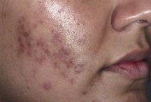 Acne Scars Removal / Healthy Skin