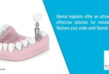 Dental Implant Raipur / , dental implants do improve the aesthetics of your mouth. Dental Implants Raipur is the most reliable solution if you want to choose for a stable option that needs less maintenance on your end. Implants develop comfort and durability because they function like a natural-real tooth.