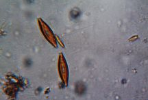 My Microscope / Pics of microscopic observations, home made.