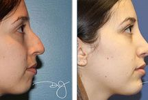Rhinoplasty and Chin Augmentation Before and After / by Dr.J Plastic Surgery