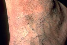 Clinica: Varices