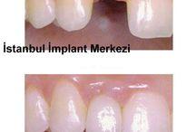 İmplant Diş Fiyatları / http://www.implantdisfiyati.org/ Çocuklarda İmplant Tedavisi Gelişim evresini henüz tamamlamamış olan çocuklarda implant tedavisi yapılmıyor. Koruyucu diş hekimliğinin esas konusu olan çocuklarda ağız ve diş sağlığı, dönemsel olarak sıfır ile üç yaş arasında süt diş dizini ve on iki yaşına kadar devam eden karma diş dizisi olarak çocuğun gelişim evresini oluşturan iki dönem şeklinde biliniyor. Bu evrede süt…