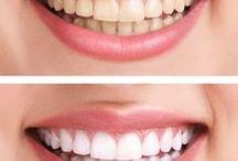 Hellere Zähne