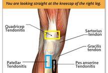 Tendonitis Relief Knee