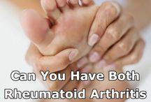 RA (Rheumatoid Arthritis)