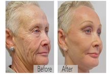 Want younger, wrinkle-free skin without getting any…