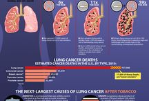Lung Cancer Awareness / If you or a loved one are facing a lung cancer diagnosis, there are many treatment options available including surgery, radiation therapy, chemotherapy and targeted therapies. Learn more about services at the Cancer Institute of Doylestown Hospital. http://www.dh.org/cancer