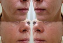 Before & After / Amazing transformations from the treatments we provide at The Doctors Laser Clinic