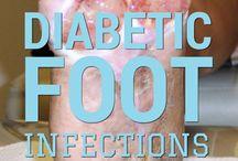 diyabetik ayak resimleri