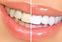 Wybielanie zębów / Jeśli marzysz o białych, lśniących zębach oferujemy Państwu wybielanie zębów metodą gabinetową oraz metodą nakładkową. Aby poddać zęby wybielaniu muszą być one wyleczone i oczyszczone z osadu oraz kamienia.