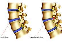 herinated disc