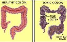Colon Cleanse Diet