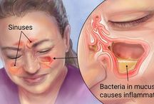 How to clear sinus infections naturally