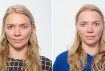 VISIA advanced skin analysis at S-Thetics