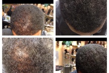 Hairloss options!! ALL NATURAL / DPL Therapies really are the answer....