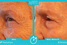 Результаты применения супер крема Instantly Ageless