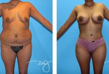 Mommy Makeover with Buttock Augmentation / Mommy Makeover with Buttock Augmentation Before and After