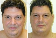 Neck Liposuction / A shapely neck is admired by cultures throughout the world. A young and firm neck draws attention to the shape of the chin and face; however, not all necks are shaped alike. Whether because of age or genetic predisposition, fatty deposits gather in the neck, causing a loss of shape in the chin and neck.