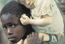 Albinism is Beautiful