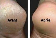Santé pieds