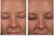 Latisse / #Latisse | Latisse Product | Latisse Effects | Long Eyelashes | Grow Eyelashes | Long Eye Lashes | Grow Eye Lashes