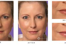 Fillers & Injections / y carefully injecting Juvederm™ underneath the skin, your skin can be completely rejuvenated, ultimately adding volume and reducing the appearance of facial wrinkles and folds. It offers patients a safe and effective treatment with little to no down-time. Juvederm™ is less invasive than other fillers and provides patients with dramatic improvement almost immediately following treatment. Results can last up to one year.