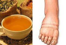 para retención líquidos pies hinchados