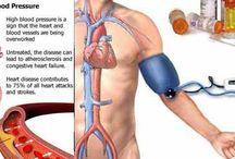 Pengobatan penyakit Darah Tinggi