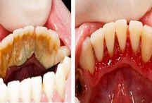 Dentiste maison