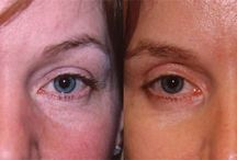 Eyelid Surgery Seattle / Your eyes tell the world so much about you- your mood, your spirit, and your soul. It starts with a few wrinkles, progresses to a heavy hood of skin on the upper lids, accompanied by puffiness. An eyelid lift, or blepharoplasty, performed by Dr. Haeck will remove skin and the excess fat which causes the puffiness, creating a natural vibrancy and alert appearance to the eyes.  http://plasticsurgeryseattlewa.com/blepharoplasty-eyelid-surgery  http://plasticsurgeryseattlewa.com