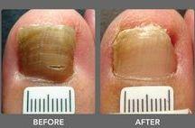 scimmel nagel