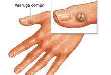 Tratamento de Pele