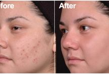 Acne Treatment Adelaide / http://www.celcius.com.au/pages/acne-reduction