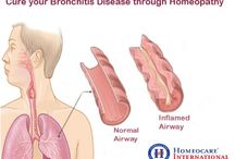 Homeopathy Treatment For Bronchitis
