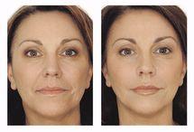 Ei-kirurgisia kasvohoitoja / Kasvot huomataan ensimmäisinä. Siksi moni panostaa kasvojen kauneuteen ja kasvojen ihonhoitoon. Cityklinikalla on monia ei-kirurgisia hoitoja, joiden avulla ulkoinen ja sisäinen kauneus saadaan kohtaamaan.