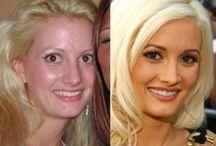 Celebrity Surgeries