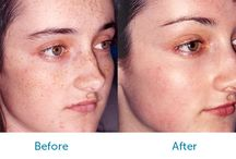 Face Surgery Before and Afters