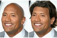 Celebrities hair loss/thinning/bald
