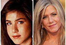 Celebrity Plastic Surgery / See how celebrities have changed with plastic surgery and facial fillers.