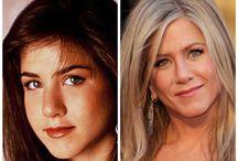 Celebrity Facial Plastic Surgery