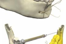 Odonto - Anestesiologia