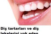 diş eti hastalıkları ve tartarlar icinn