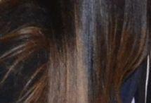 Απώλεια μαλλιών