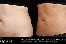 SculpSure Body Contouring / SculpSure is a breakthrough in light-based body contouring designed to reduce stubborn fat in problem areas such as the abdomen and love handles, helping you achieve a slimmer and natural looking appearance without surgery or downtime.