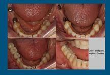 Implant dentaire en Roumanie / Avez-vous besoin d'implant dentaire en Roumanie? Nous vous proposons notre  spécialistes et  prix avantageux pour réduire les coûts. Nous vous invitons à les voir ici!
