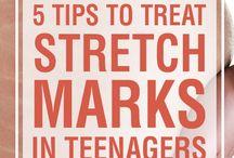 Tips & Hacks