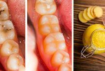 cura per i denti