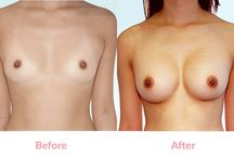 Asian Breast Augmentation (before and after) / This board contains sample photos of Asian Breast Augmentation done in various ways and with different styles of implants. Note that although the patients have chosen different types of implants and location of incisions the common feature in all is the smaller SIZE of implant compared to those generally chosen by Western women. #asian #breastaugmentation #breastimplants