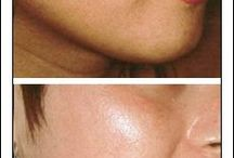 Reduce facial or acne scars